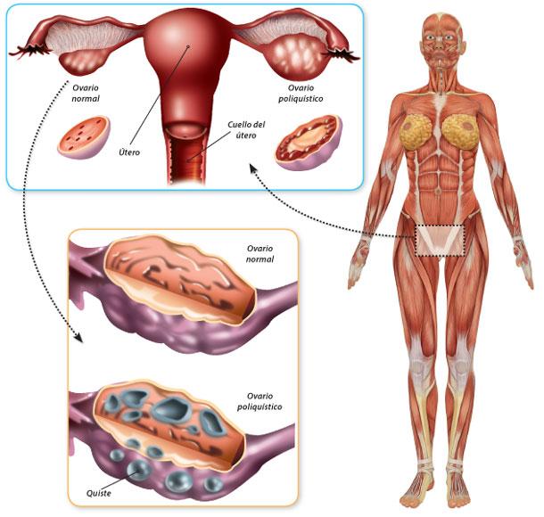 ovarios-poliquisticos